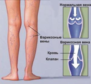 Боли в ногах – Сеть клиник «ОСТЕОМЕД»