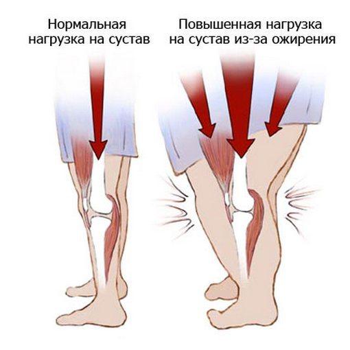 Болят ноги от бедра до стопы: что это может быть и как лечить