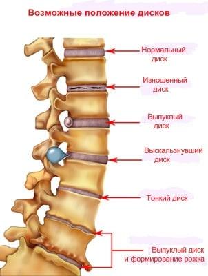 Медицинская группа МФД - Будьте здоровы! | Боли в спине