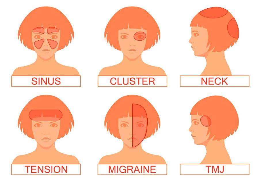 6 видов головной боли: диагностика и лечение