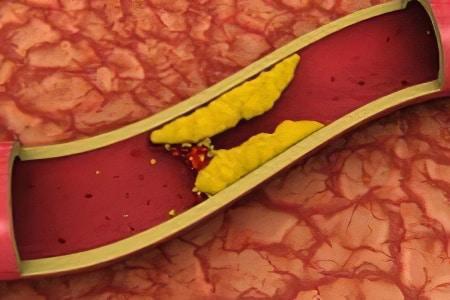 Аорта склерозирована