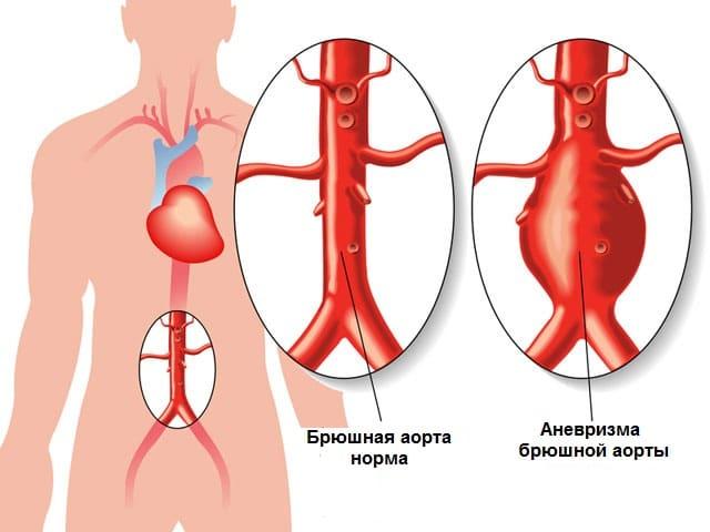 Атеросклероз аорты сердца: что это и как лечить стволовыми клетками.