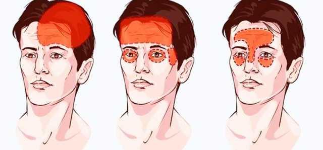 Болит лобная часть головы причины: распространённые факторы, приводящие к  болям - Медицинский портал