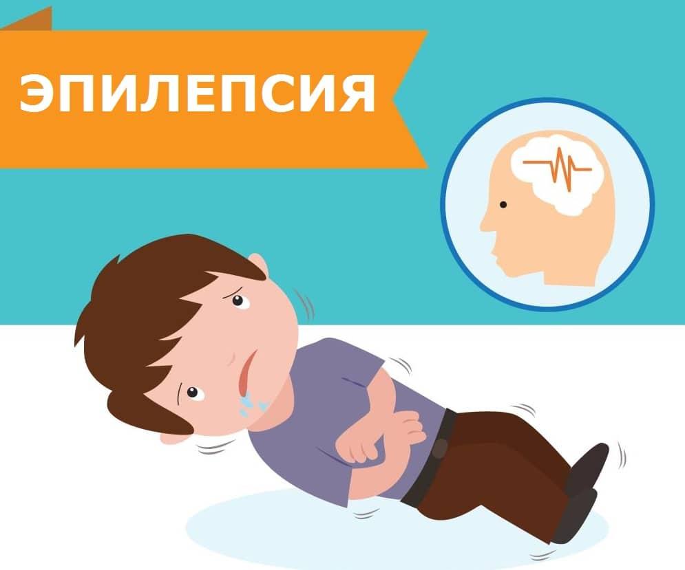 Эпилепсия у детей - причины, признаки и симптомы детской эпилепсии.
