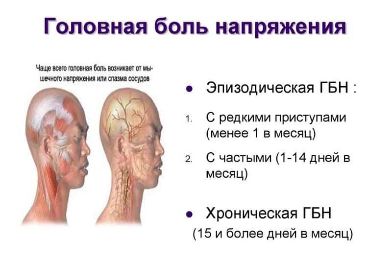 Головная боль напряжения - описание болезни, симптомы   📝 Диагностика и  👩⚕️ лечение - Головная боль напряжения