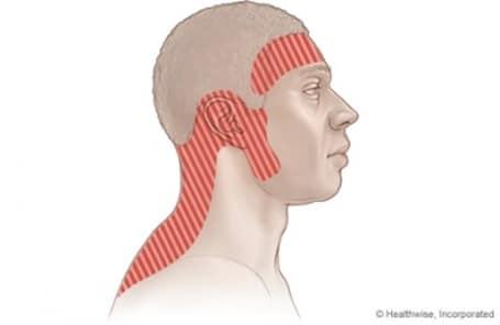 Головная боль напряжения (опросник)   RMP