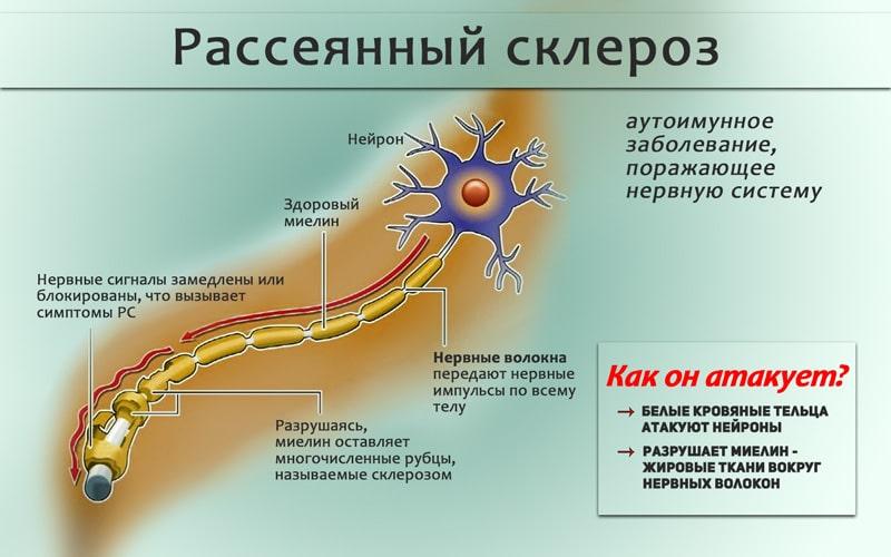 Лечение рассеянного склероза при помощи каннабиса - RastaMaster.info