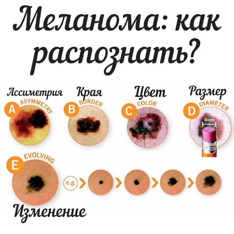 Меланома: диагностика и лечение в Минске