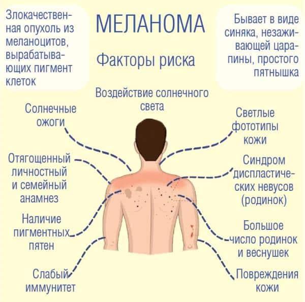 О ранней диагностике и профилактике меланомы кожи | Информационный портал  города Шахты