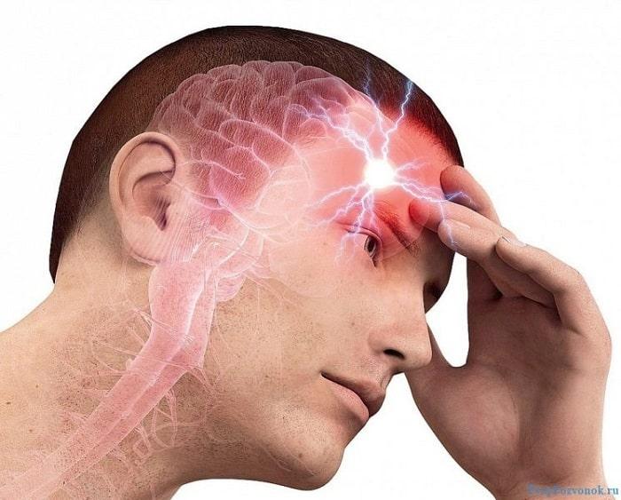 Почему болит голова?   Пикабу