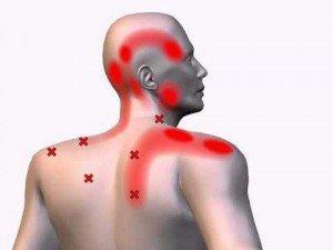 Шейный остеохондроз - причина головной боли? Часть 2 | О мигрени и не  только | Яндекс Дзен