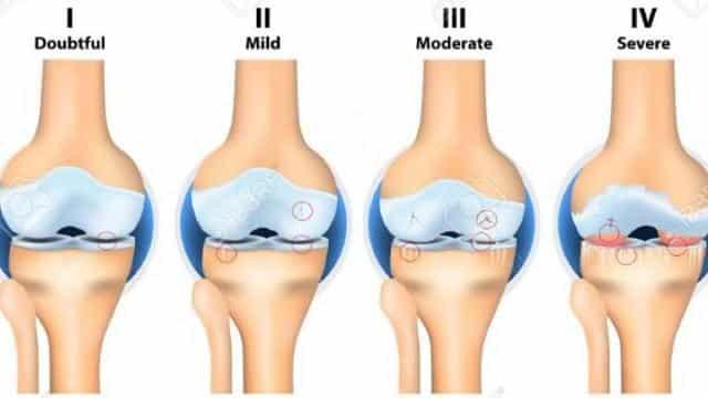 Субхондральный склероз суставных поверхностей: что это такое, симптомы и  лечение